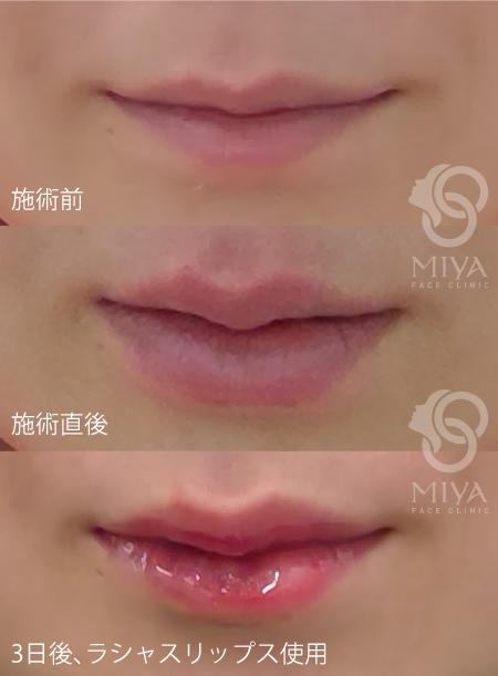 口唇ヒアルロン酸 症例