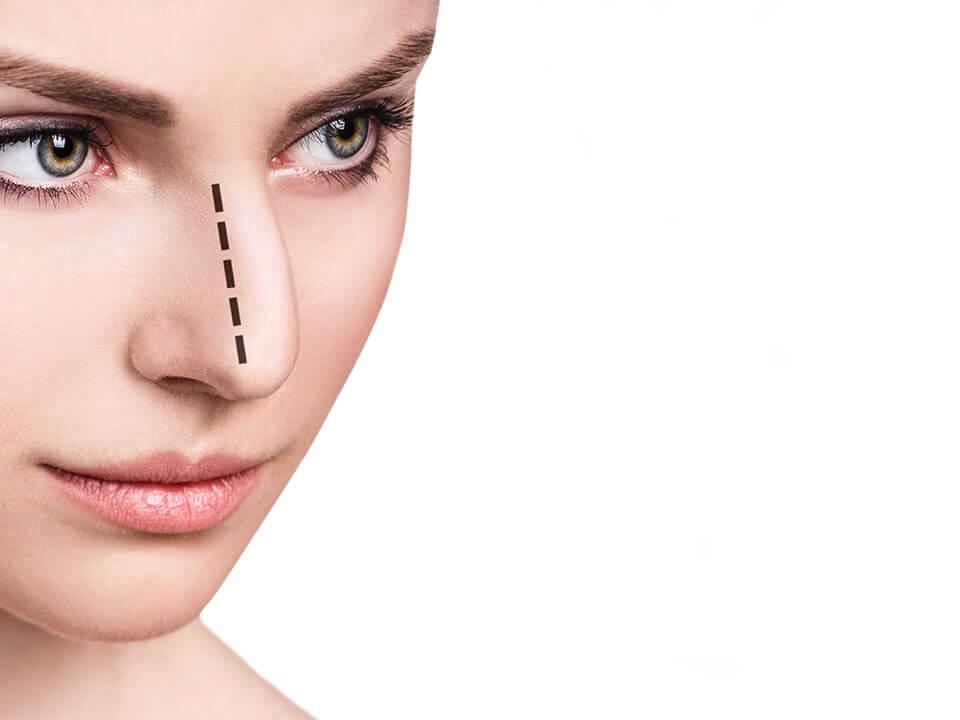ワシ鼻修正術後の鼻をイメージした画像