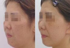 顔のリフトアップ手術