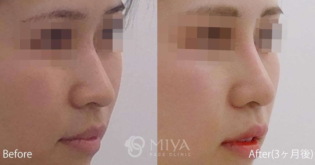 隆鼻術 症例