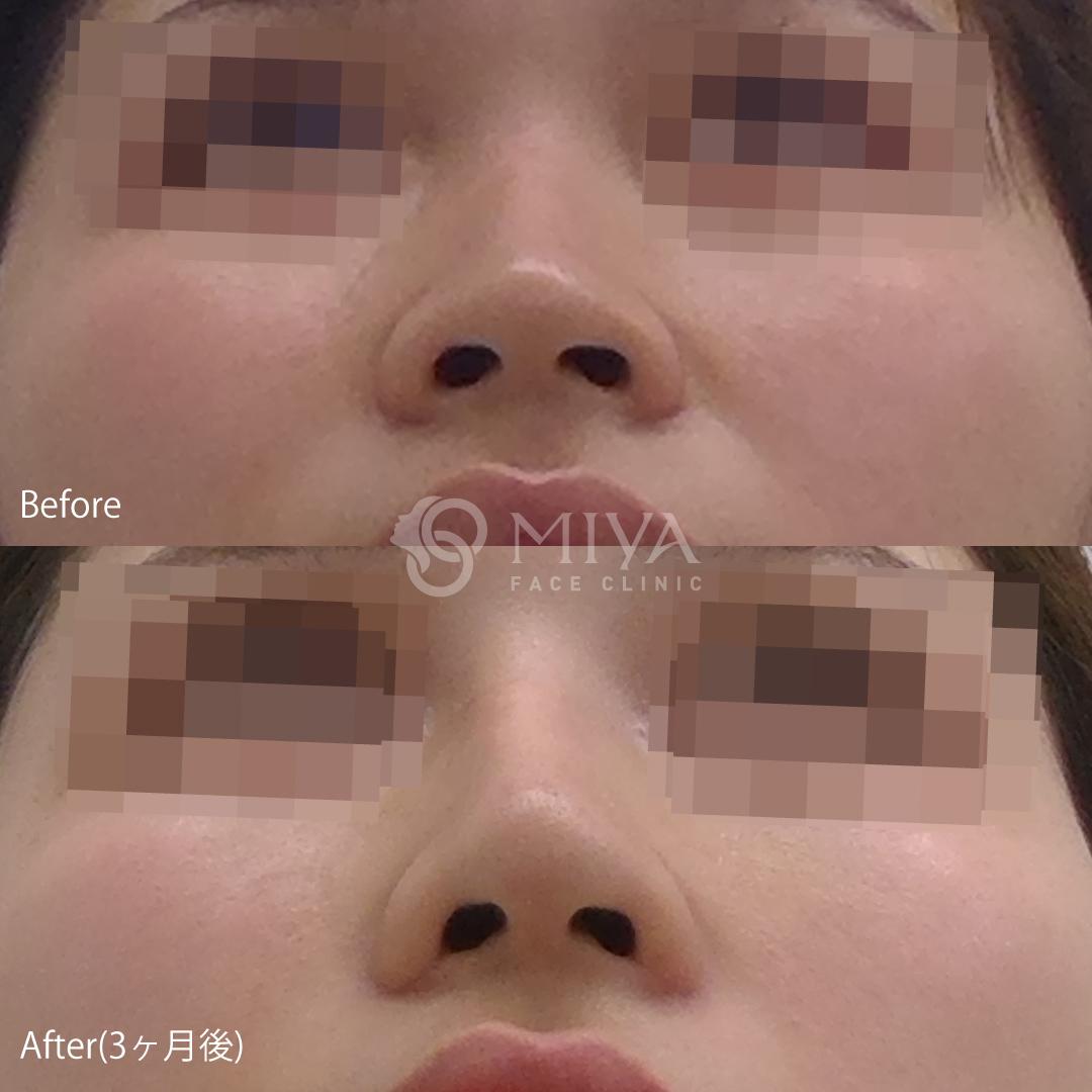 鼻筋を通す 症例