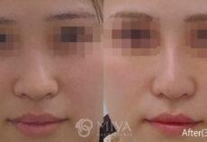手術症例の初紹介【隆鼻術・鼻翼縮小術】