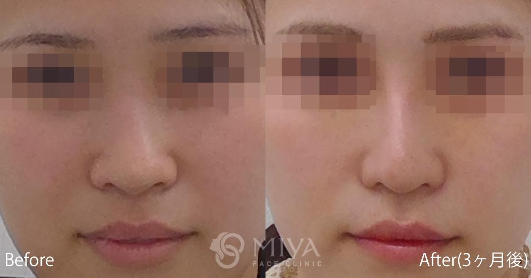 鼻プロテーゼ 症例