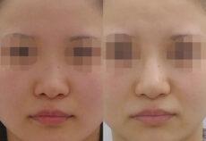 隆鼻術(鼻を高く)の症例