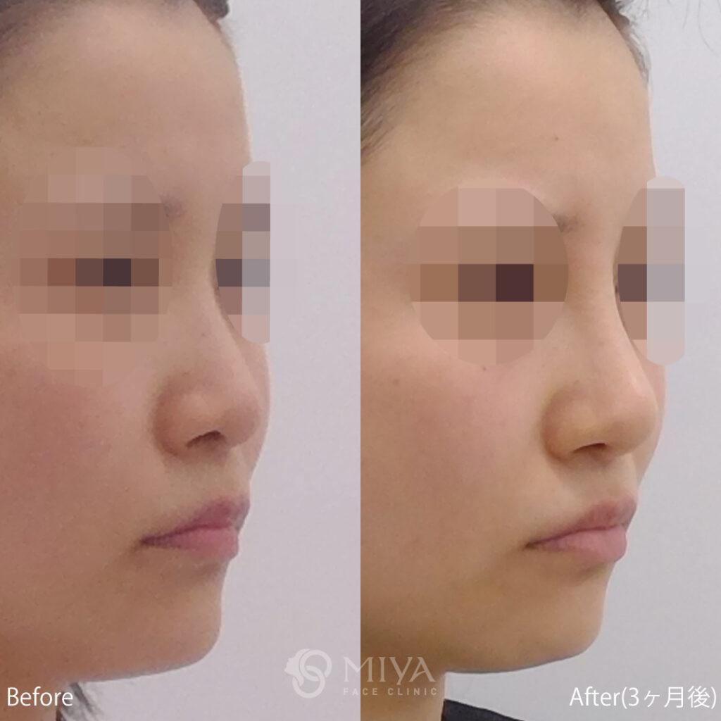 鼻プロテーゼ,隆鼻