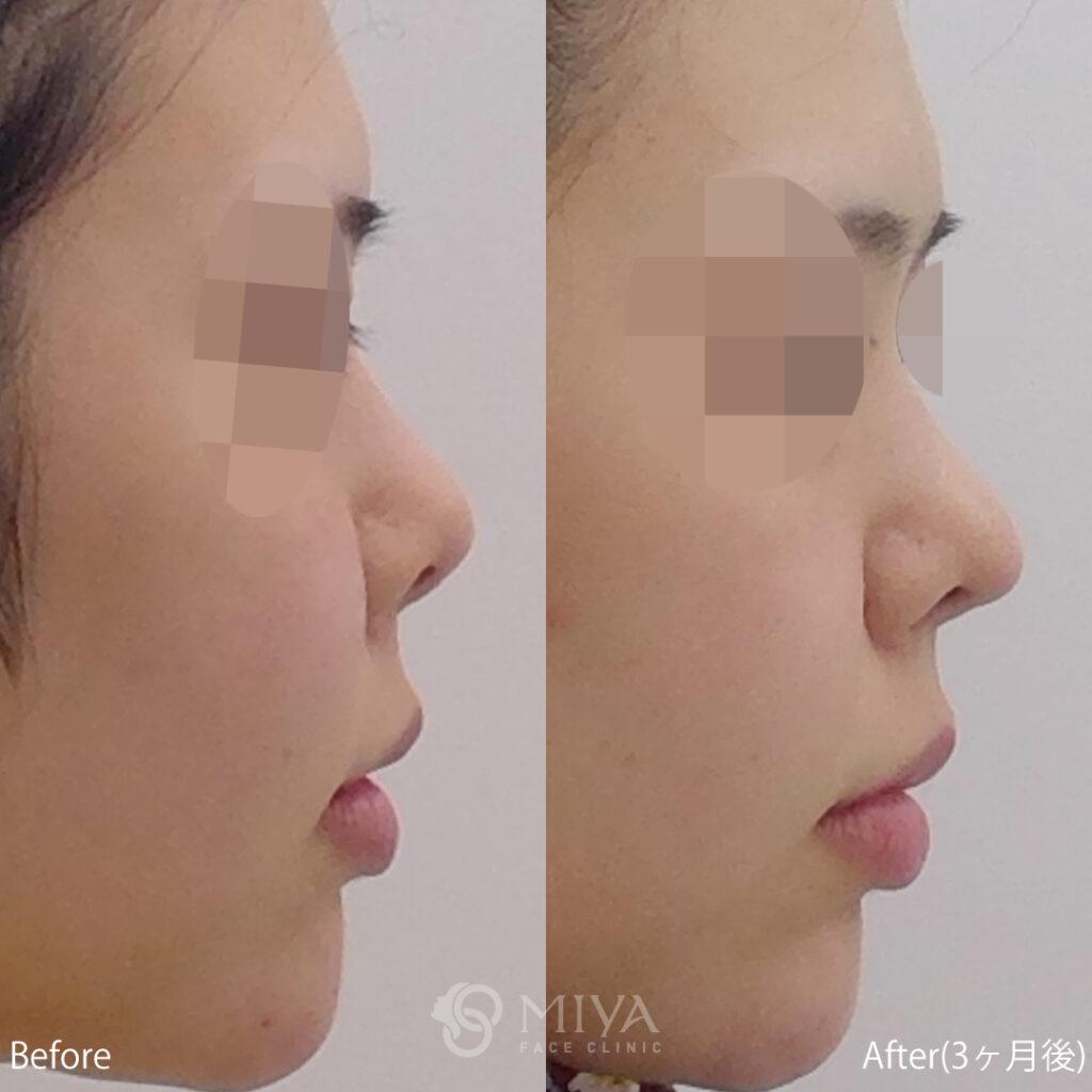 鼻プロテーゼ 鼻中隔延長 症例