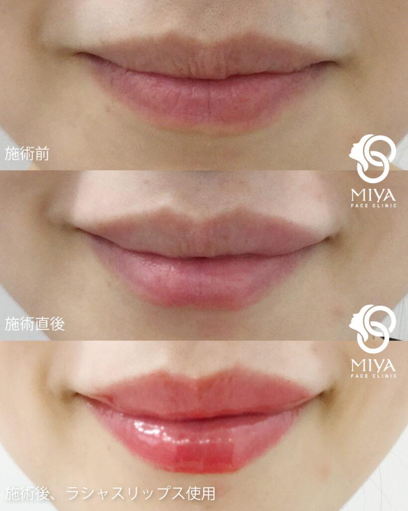 口唇増大術,ヒアルロン酸