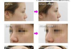 鼻の整形の症例