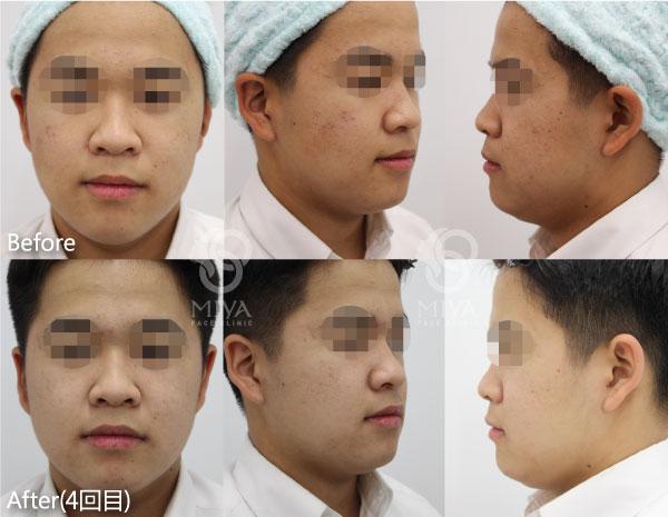 サリチル酸マクロゴールピーリング ニキビ治療 症例