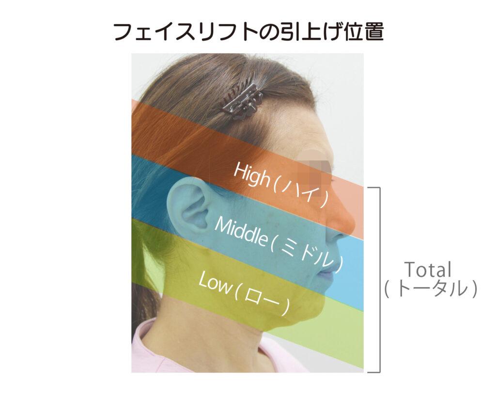 フェイスリフトの引上げ位置はHight(ハイ)、Middle(ミドル)、Low(ロー)の三種類があり、すべてを含む場合はTotal(トータル)となります。