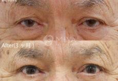 眼瞼下垂症手術について