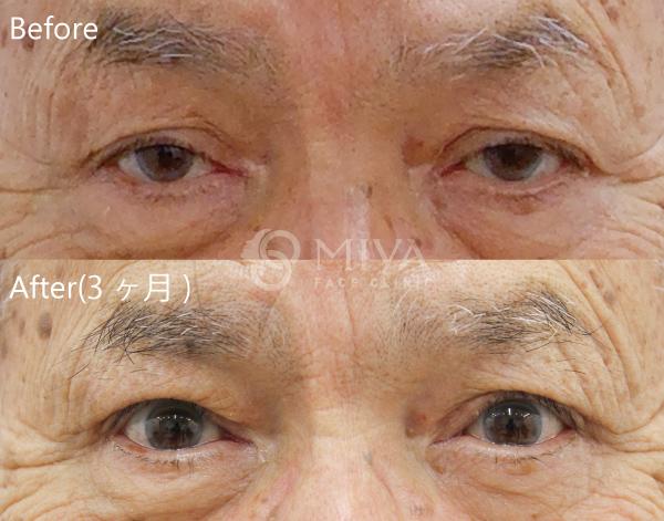 症例 眼瞼下垂