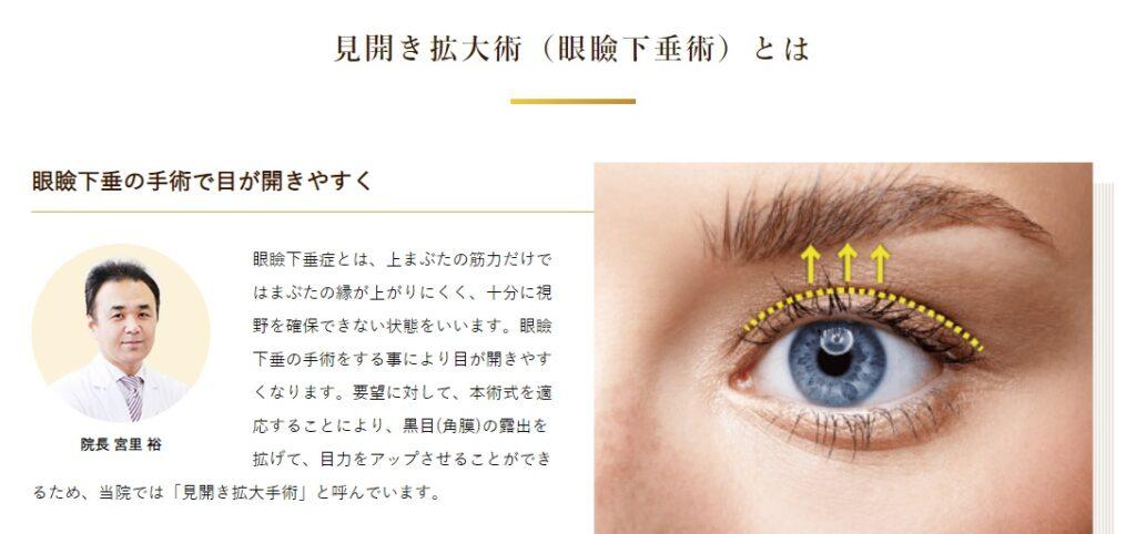 見開き拡大術 眼瞼下垂術