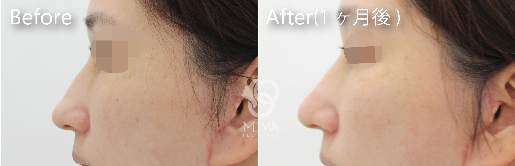 鼻尖縮小症例3