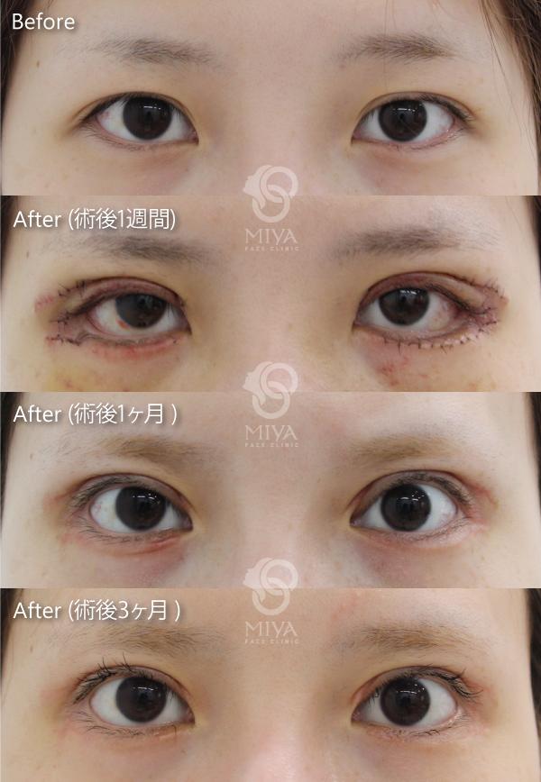 ライン グラマラス 目尻切開+たれ目形成術(グラマラスライン)で目を外側と下方に大きくした症例写真 :