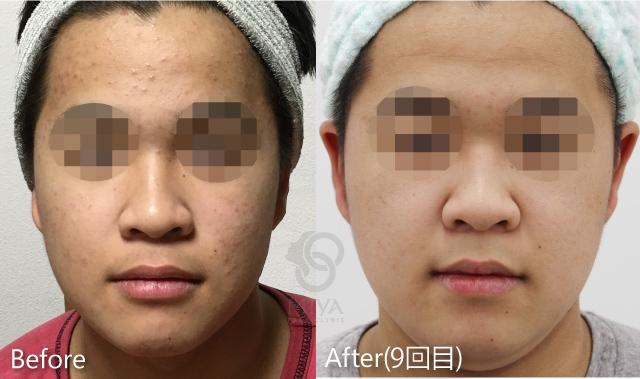思春期ニキビ症例の4回目施術直後画像です。赤ニキビが改善され目立たなくなっています。肌質も向上し、美白効果も見られます。今後も継続治療することでさらなる効果が期待されます。