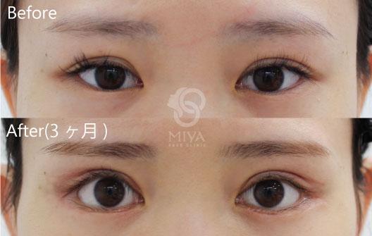 見開き拡大術(眼瞼下垂術)・下眼瞼たるみ取り術・グラマラスライン・目尻切開の症例