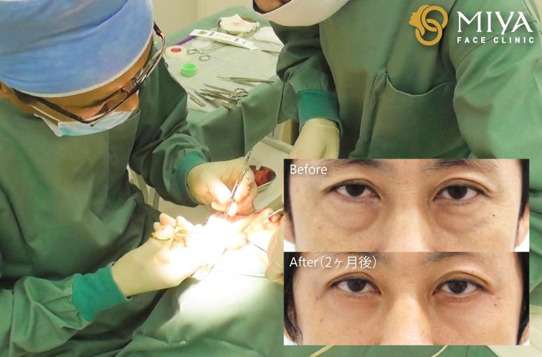 目の下のクマ下眼瞼たるみ取りイメージ